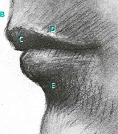 Dent Between Nose And Mouth