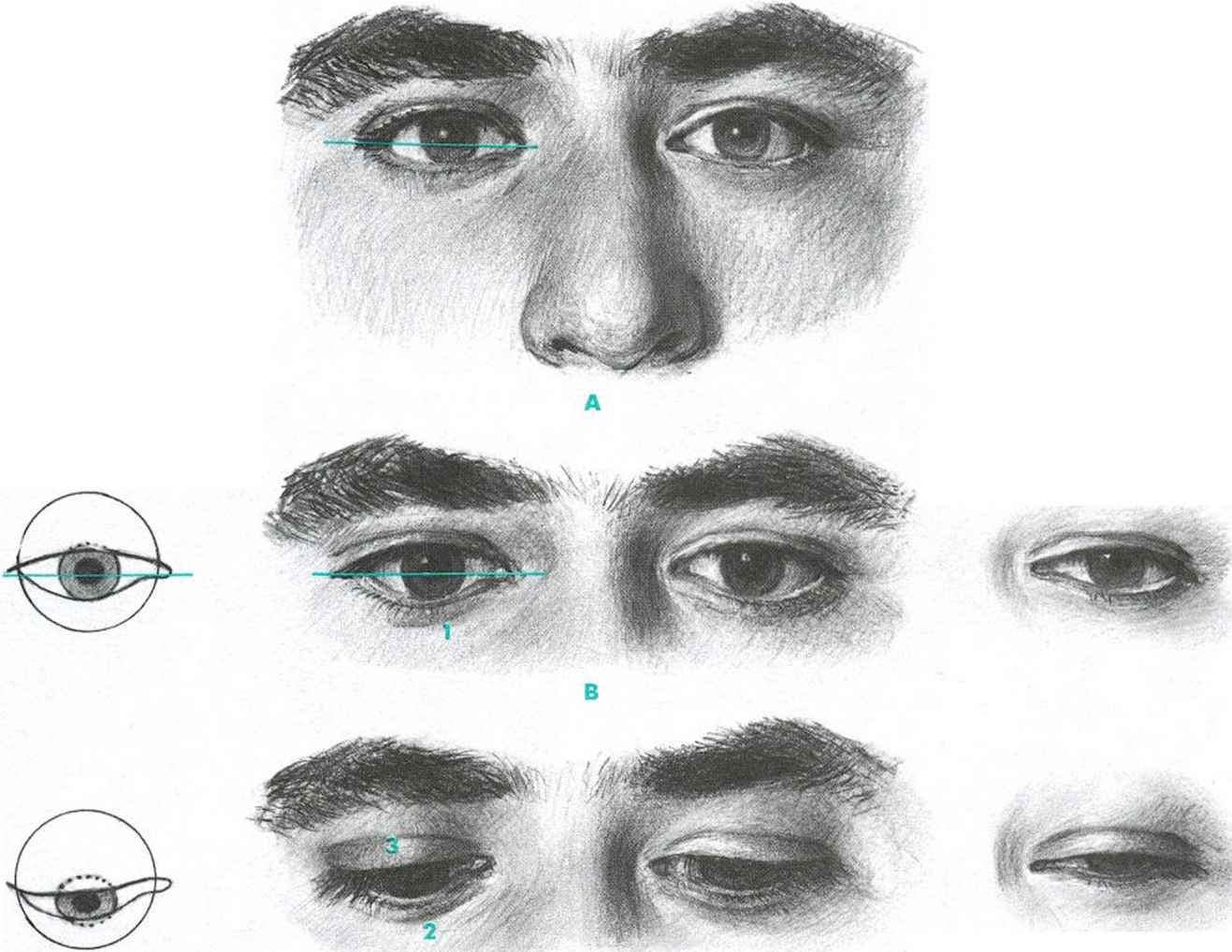 Expressive Eyes Drawing Eyes Facial Expressions