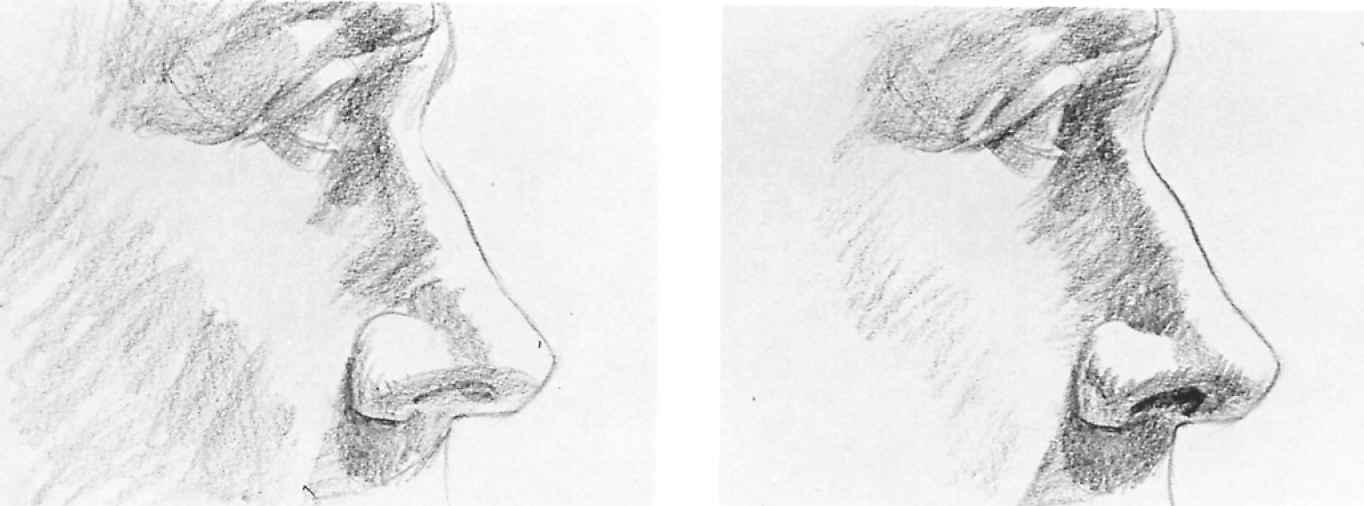 Nose draws